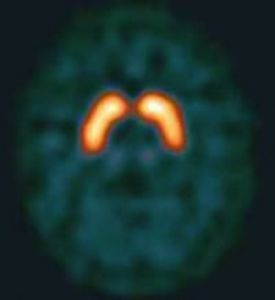 DaT SPECT scan showing neural pathways of dopamine in the brain
