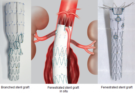 Branched and fenestrated stent grafts